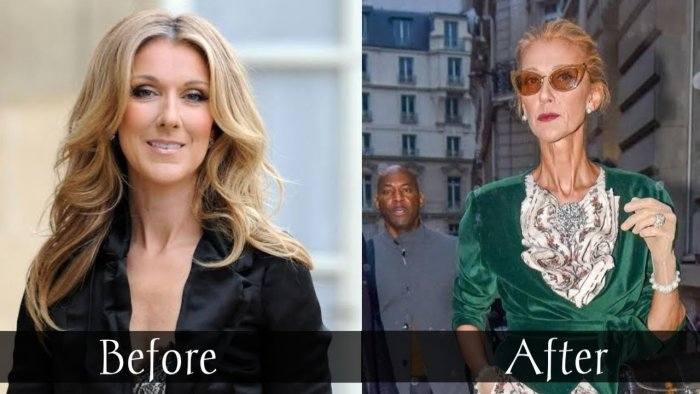 celine dion before and after weight loss